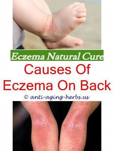 Xerotic Eczema Eczema Tratamento Natural Eczema On My