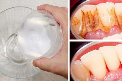 Bochecha durante 1 minuto com esta receita caseira e elimina a placa e o tártaro dos dentes!