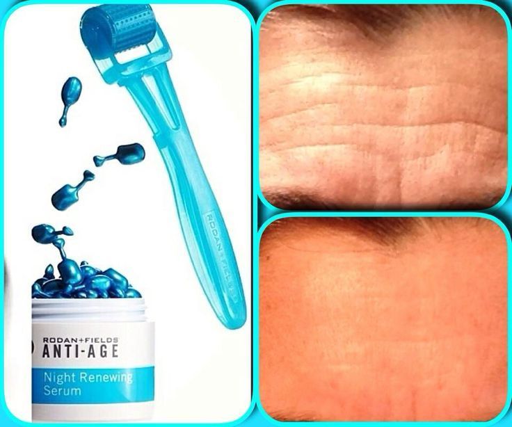 Roll Away Your Wrinkles Remove Forehead Lines With The