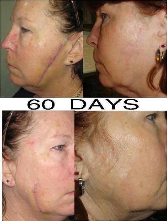 Nerium Real Results, Real People! Contact me for a free 5 day ...