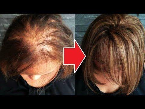 【충격】피마자 기름을 머리털에 바르면 놀라운 변화가!피부의 기미, 점 제거에도 효과있어!【4 개의 멋진 효과】 - YouTube