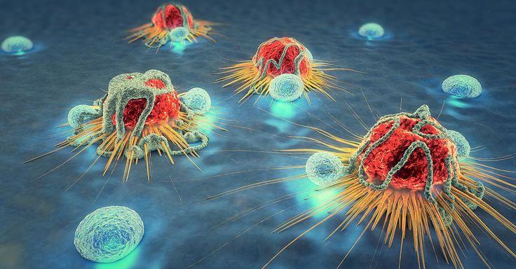 """News - Tipp:  http://ift.tt/2iLAcuH Renommierte Krebsärztin - """"Immuntherapie lässt im besten Fall Tumore sowie Metastasen innerhalb weniger Monate wegschmelzen"""" #aktuell"""