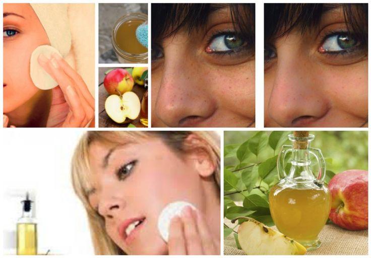 Es impresionante lo que ocurre cuando lavas tu rostro por 5 días consecutivos con vinagre de manzana, es una de las mejores formas de realizar una limpieza fac