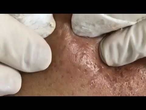 Acne, Blackheads And Pimples Removal Cystic Acne Treatment With Relaxing Music #185 Stubborn Milia Extractions with Dr Pimple Popper …