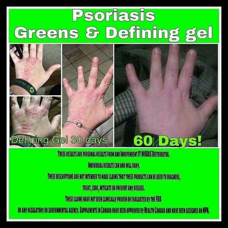 ❤️90 Day Challenge on Defining Gel & Greens! What more could you ask for❓❗️❤️Are you ready to be healthy❓ I am looking for 5 new skeptics to take before & after pictures for my portfolio‼️ www.wrapswithmarian.com #defininggel #liquidgoldinabottle #Greens #alkalize #detoxify #probiotic #teamberry #TeamOrange #psoriasisproblems  #skinproblems #acne