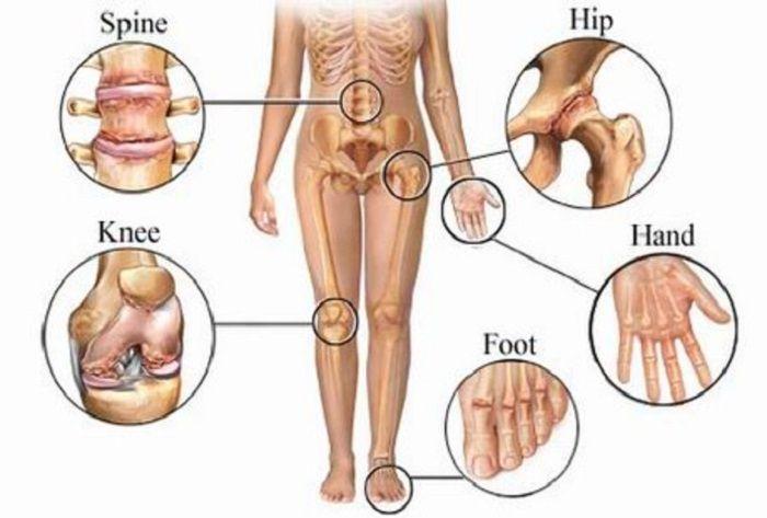Θεραπευτικά έλαια: Μειώστε τον πόνο της αρθρίτιδας και το πρήξιμο
