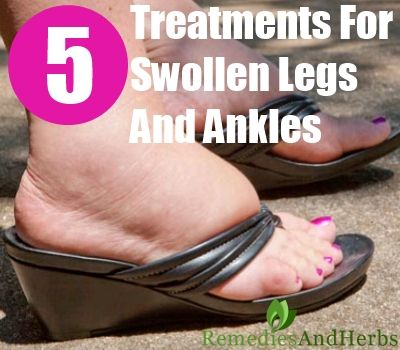 Essential Oil Treatments For Swollen Ankles, Legs and Feet