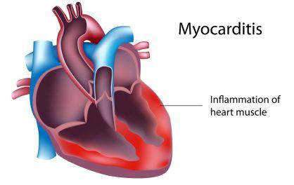 Miokarditis Gejala Penyebab Dan Cara Mengobatinya,- Miokarditis adalah peradangan miokardium, lapisan tengah dinding jantung. Miokarditis dapat mempengaruhi sel-sel otot jantung dan sistem listrik jantung, yang menyebabkan penurunan fungsi memompa jantung dan irama jantung yang tidak teratur.