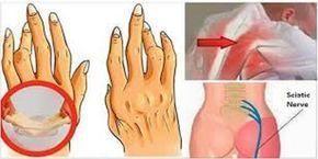 olej rycynowy -----Pozbądź się bólu stawów, pleców i rwy kulszowej. Sposób ten działa lepiej niż tabletki! - Zdrowe poradniki