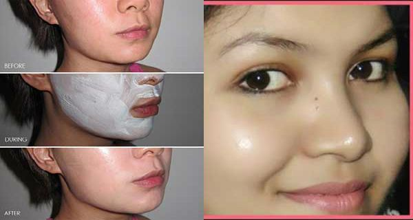 Use it for 3 Nights, and get Spot free glowing skin Like Her | Remedies