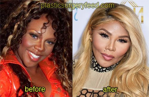 Lil Kim Before And After Plastic Surgery 1 Plastic