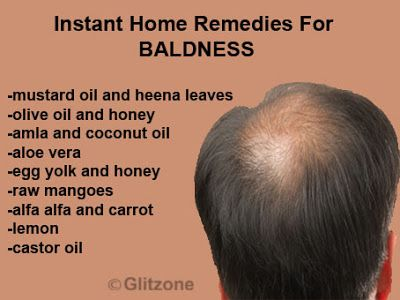 Instant Home Remedies To Cure Baldness