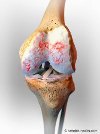 Knee joint pain and discomfort from arthritis can be experienced in different ways: a dull ache, a sharp, stabbing pain, stiffness, warmth, and swelling.