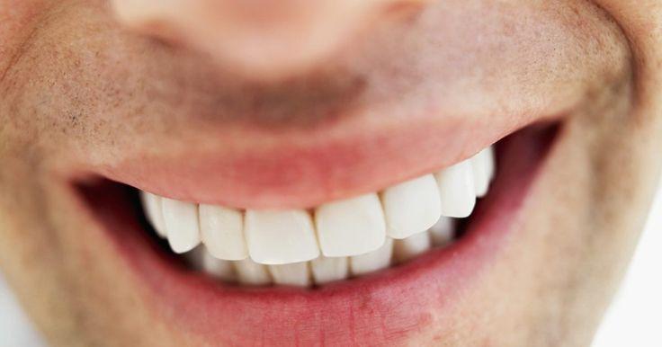 O que fazer se engolir um implante dentário. Uma ponte dentária geralmente é uma prótese parcial fixa. Ela preenche um espaço vazio onde os dentes costumavam estar. Ela pode ser usada para proteger os dentes restantes de se deformarem, deslocarem ou caírem.