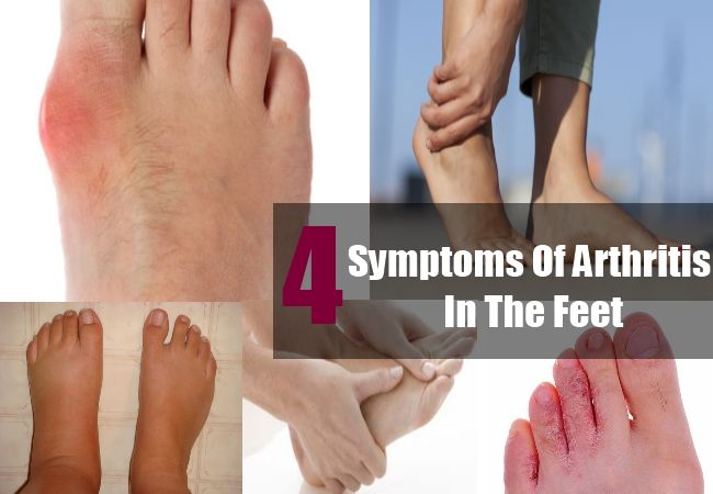 4 Common Symptoms Of Arthritis In The Feet | http://www.findarthritistreatment.com/five-common-symptoms-of-arthritis-in-the-feet/