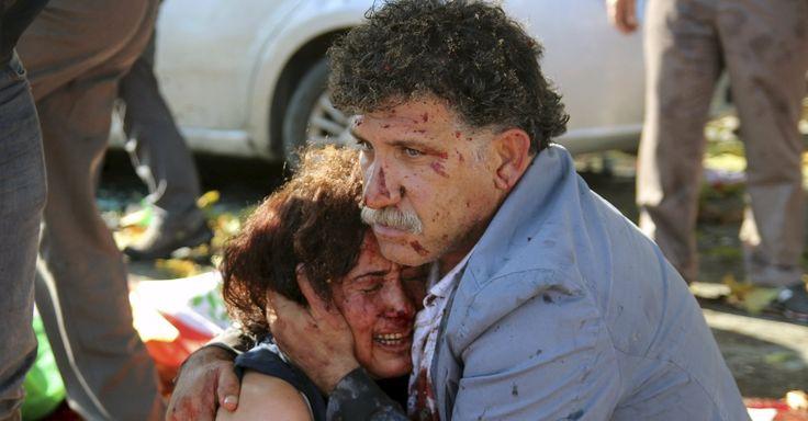 20151010 - Homem e mulher feridos se abraçam após explosão diante da principal estação de trem de Ancara (Turquia), durante uma manifestação pacífica contra o governo. Dezenas de pessoas morreram em decorrência de duas explosões ocorridas durante a concentração do ato organizado por grupos de esquerda, incluindo o Partido Democrático do Povo Curdo. Há suspeita de que os ataques tenham sido feitos por suicidas. PICTURE: Tumay Berkin/Reuters