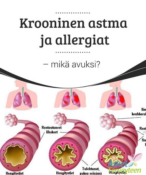 Krooninen astma ja allergiat - mikä avuksi?   #Krooninen astma ja allergiat ovat #valitettavasti kaksi erittäin yleistä #nykyajan sairautta.  #Kauneus