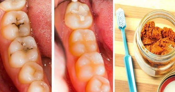 Tooth decay and cavities are among the world's most common oral health problems. There are two big causes of tooth decay, sugary food intake and the plaque bacteria that breaks it down to release acid (that rots the tooth). Getting tooth decay can be a sign of a lack of oral hygiene and/or getting too much sugary foodstuff in your diet.  With this simple and powerful tooth mask you will stop the process of tooth decay, heal it naturally and also during the process your teeth will get whiter.