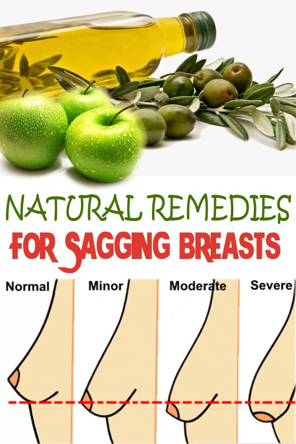 Natural Remedies for Sagging Breasts | healthybuzzer.com