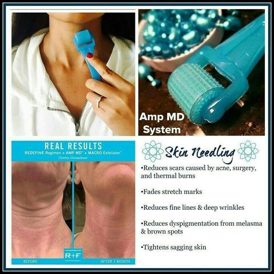 "DID YOU KNOW?   By the age of 30, our collagen production slows by 1% each year.  Around age 40, collagen deteriorates faster than it can be produced.   Rodan and Fields Redefine AMP MD Roller has ""little needles"" that help the skin build back the collagen. The tiny blue capsules - Night Renewing Serum - contain peptides and retinol. You only roll it for a minute. Who doesn't have a minute?   #rodanandfields #reduceswrinkles #AMPMDroller #firmerskin bchipman@myrandf.com"