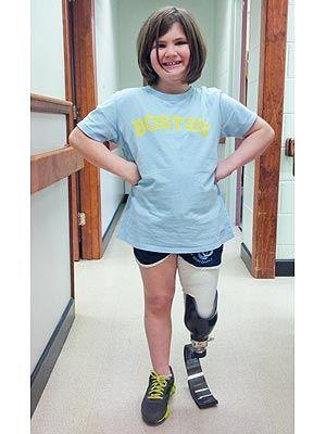 Boston Marathon Bombing Survivor Who Lost Her Brother Gets a New Leg