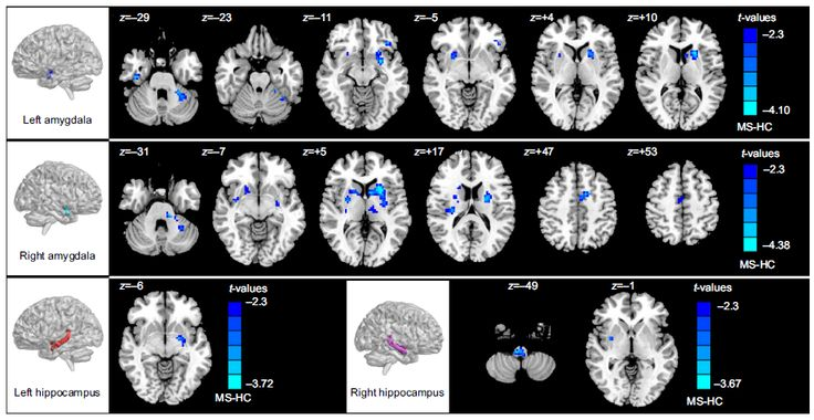 Figure S2 Brain regions with significant differences (P,0.05, corrected) in rsFC patterns for all seed regions between the RR MS patients and the HCHCs.