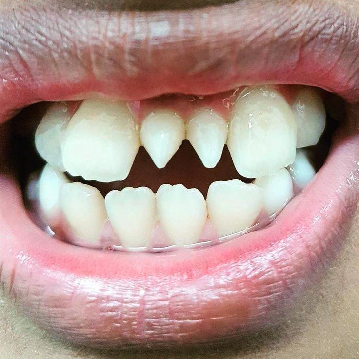 #MESIODENTE# . Durante as fases iniciais da formação dentária os distúrbios de desenvolvimento podem resultar em anomalias dentre as quais se destacam os dentes supranumerários. O mais freqüentemente encontrado na arcada dentária é o mesiodens situado na linha média da maxila entre os incisivos centrais superiores. Sua prevalência é maior no sexo masculino e na dentadura mista. Pode ser encontrado de forma isolada ou raramente em pares apresentar-se erupcionado ou incluso em posição normal…