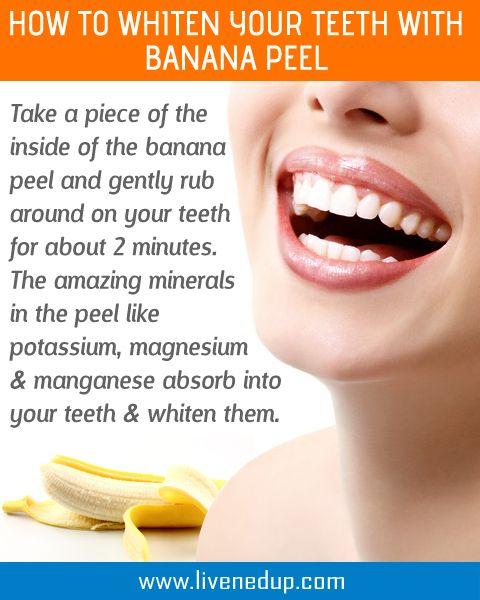 Teeth Whitening Using Banana