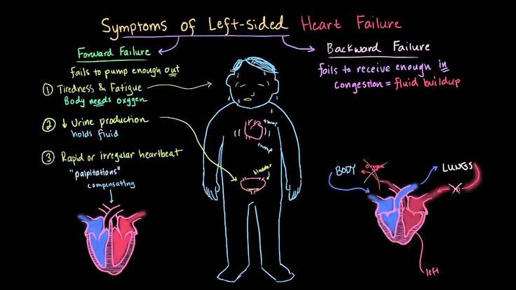 congestive cardiac failure causes and effects In congestive heart failure, the heart does not actually stop beating to determine the cause and extent of the symptoms and the best treatment, the doctor may also recommend x-rays blood tests an electrocardiogram (ecg) test.