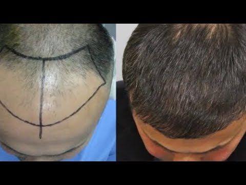 ملعقة واحدة و يزول الصلع و الشيب النتيجة ممتازة لإنبات الشعر و تكثيفه و ...