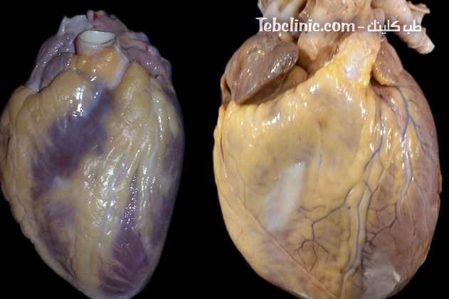 أسباب وأعراض ضعف عضلة القلب وطرق العلاج Dilated Cardiomyopathy Garlic Vegetables