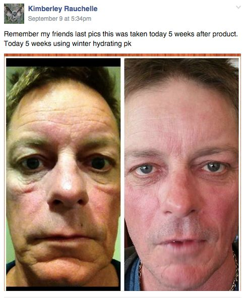 Amazing results with the Hydrating Trio: Skincerity + Eye Effects 3 + Peptide Plus - www.buynucerity.com/219772