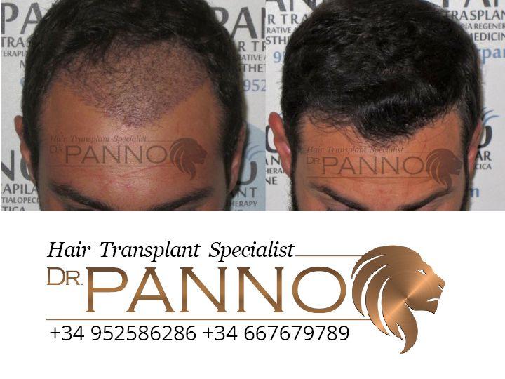 Aumento de densidad en zona frontal, espectacular resultado tras injerto capilar realizado con Dr. Panno