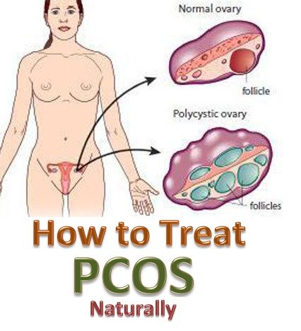 Are you one of the millions of women dealing with PCOS? Treat it naturally with these remedies.