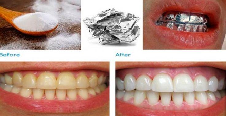 Receita simples para clarear os dentes!!