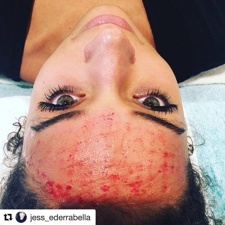 Facial blood treatments #6