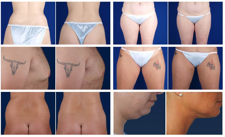 LipoControl Before and After Photos: Neck, Thighs, Gynecomastia, Buttock