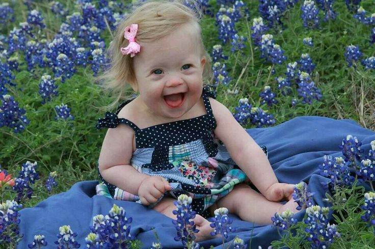 Beautiful baby girl with Down syndrome. ♥
