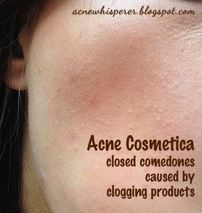 15 best images about rosacea solutions on pinterest wear