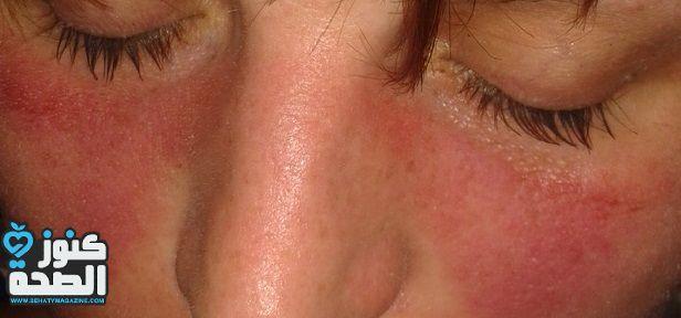 هل يمكن الشفاء من مرض الذئبة الحمراء Lupus