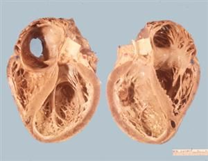 Can u see the differences? Sample from dilated cardiomyopathy patient.