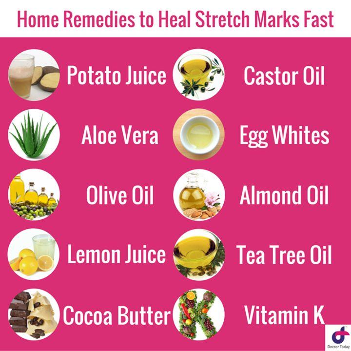 Home Remedies to Heal Stretch Marks Fast Potato Juice Aloe Vera Olive Oil Lemon Juice Cocoa Butter Castor Oil Egg Whites Almond Oil Tea Tree Oil Vitamin K