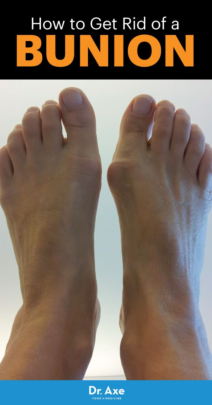 Bunion Symptoms, Causes + 5 Natural Treatments