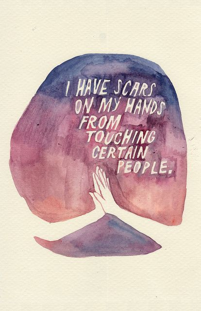 I have scars on my hands from touching certain people.  By rocketrictic, via Flickr
