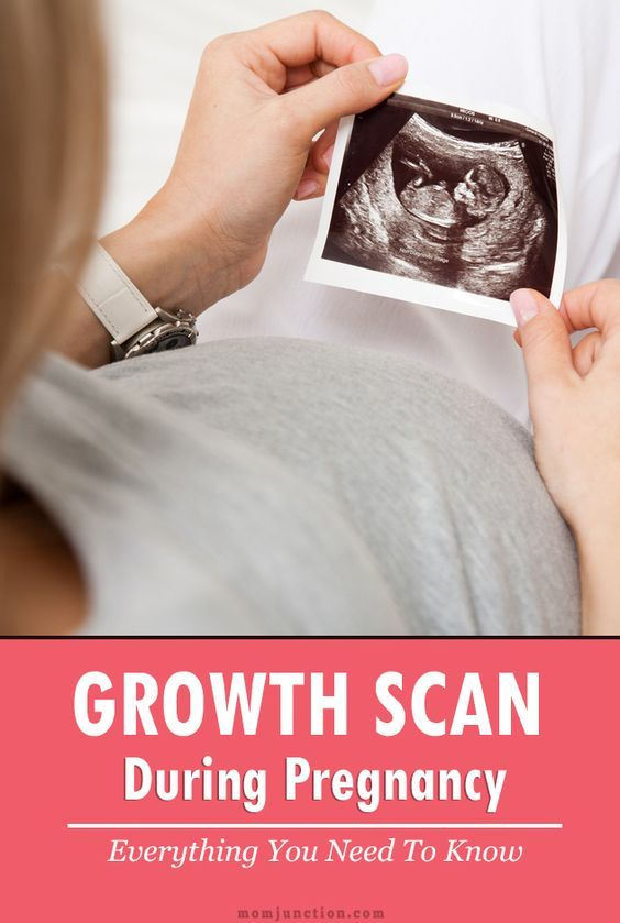 Growth Scan During Pregnancy – Everything You Need To Know ...