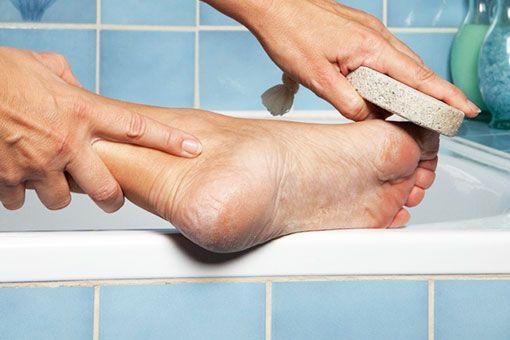 Ispucala i suha koža na petamaje vrlo čest problem koji može brzo prerasti iz estetskog problema u zdravstveni.