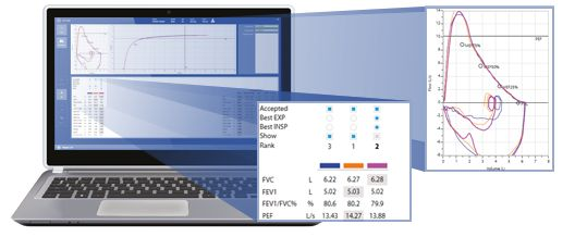 Spirometry testing with Omnia is extremely simple yet powerful.
