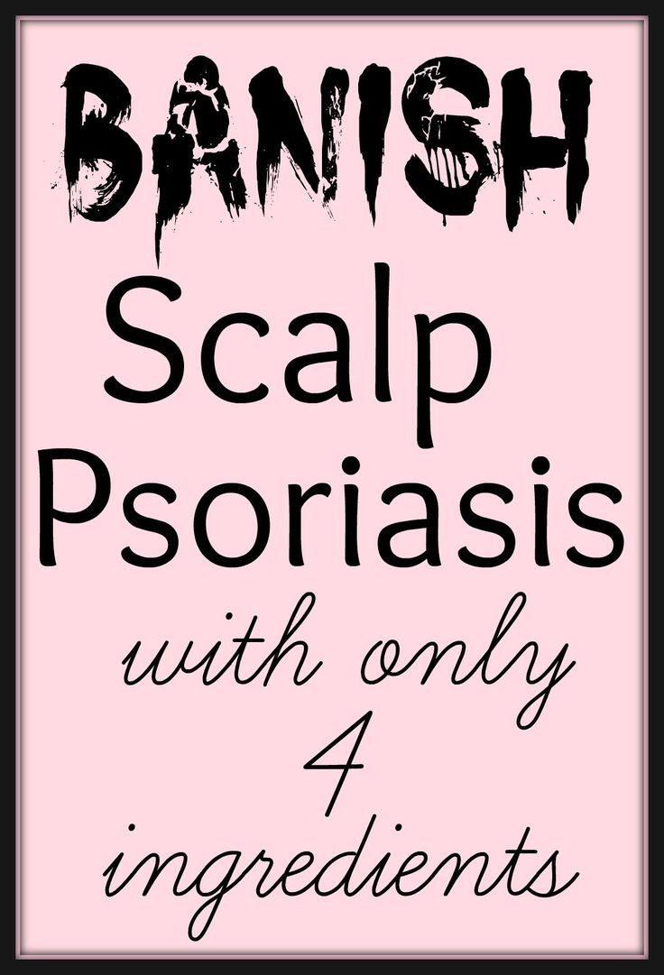 17 Best Ideas About Scalp Psoriasis Treatment On Pinterest