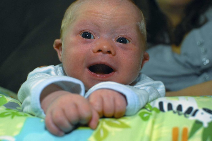 6 Tips for Holding and Positioning an Infant with Down Syndrome. Repinned by SOS Inc. Resources @sostherapy