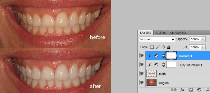 Natural Teeth Whitening – Retouching Tutorial